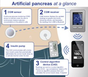 الاصطناعي في علاج السكري 1 300x263 - البنكرياس الاصطناعي في علاج السكري
