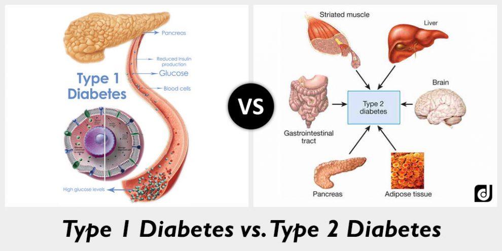 الفرق بين السكري الاول والثاني