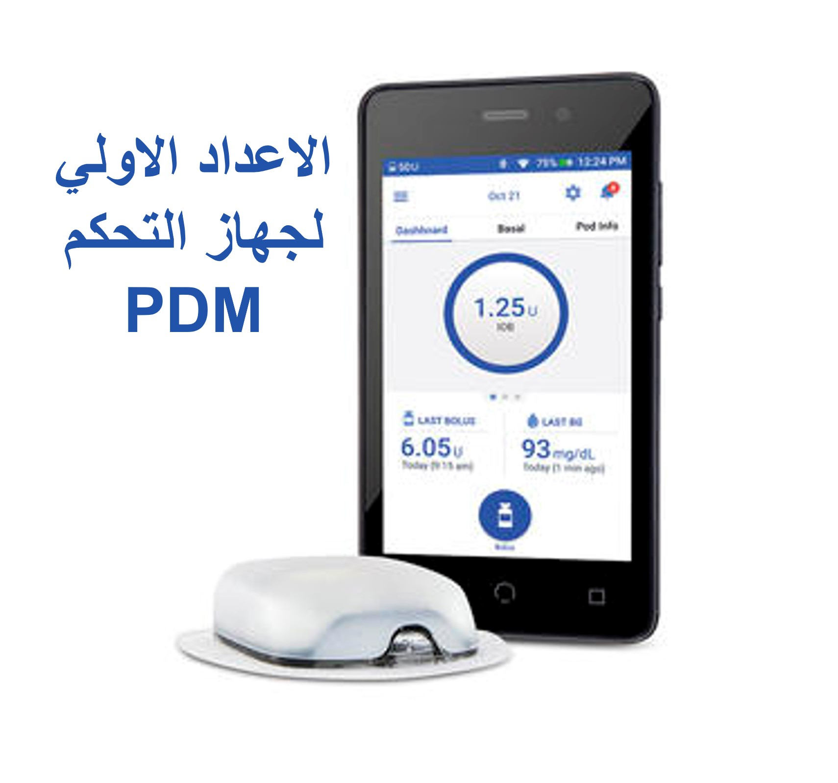 إعداد جهاز تحكم PDM مضخة اومنيبود داش OmniPod